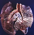 Small cell carcinoma (3931938372).jpg