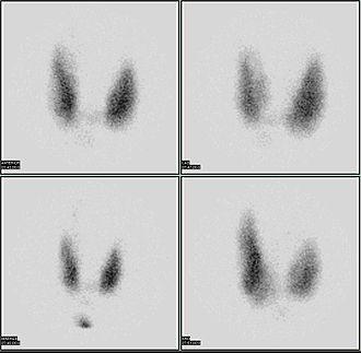 Radioactive iodine uptake test - Image: Thyroid scan