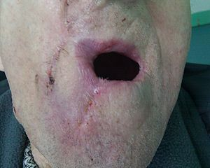 Lip reconstruction - Image: Abbe Estlander flap 12 days after 1st op open