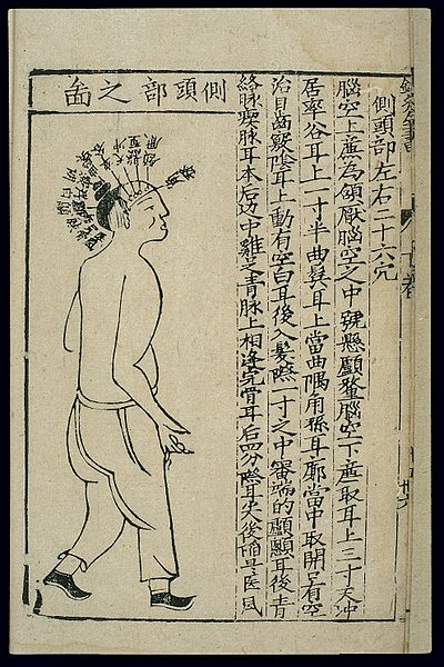 Head Size Conversion Chart: Acupuncture chart; side of the head Chinese woodcut Wellcome ,Chart