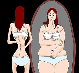 Description de l'image AnorexiaPaint.jpg.
