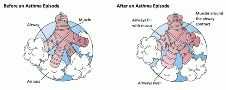 Asthma before-after.png