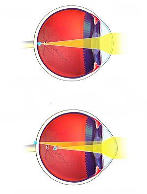 opriți operația de deteriorare a vederii