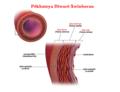 Blausen 0055 ArteryWallStructure ku.png