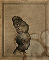 Child with two skulls joined together at the vertex, seen fr Wellcome V0007870ER.jpg