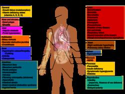 Cystic fibrosis manifestations.png