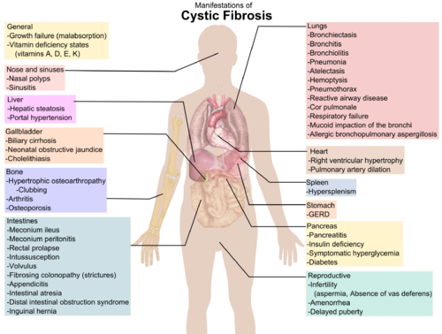 Cystic fibrosis - Wikipedia, the free encyclopedia