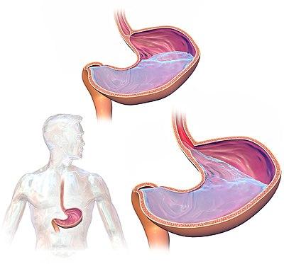 GastroEsophageal Reflux Disease (GERD).jpg