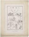 Homo sapiens - Anencefalie - 1700-1880 - Print - Iconographia Zoologica - Special Collections University of Amsterdam - UBA01 IZ19600210.tif