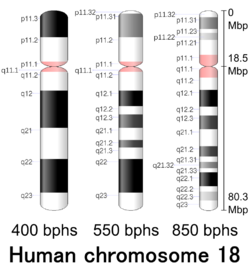 translocation of chromosome 18 and 14 relationship