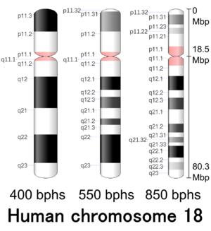 Chromosome 18 (human) - Image: Human chromosome 18 400 550 850 bphs
