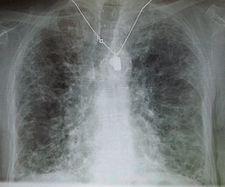 Intersticiální plicní fibróza spůsobená amiodaronem