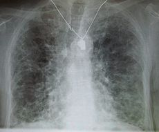 A chest X-ray demonstrating pulmonary fibrosis.  By history, the pulmonary fibrosis is thought to be due to amiodarone.