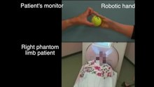 File:Induced-sensorimotor-brain-plasticity-controls-pain-in-phantom-limb-patients-ncomms13209-s2.ogv