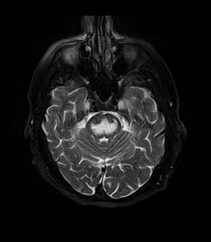 MRI Central Pontine Myelinolysis fat sat T2.jpg
