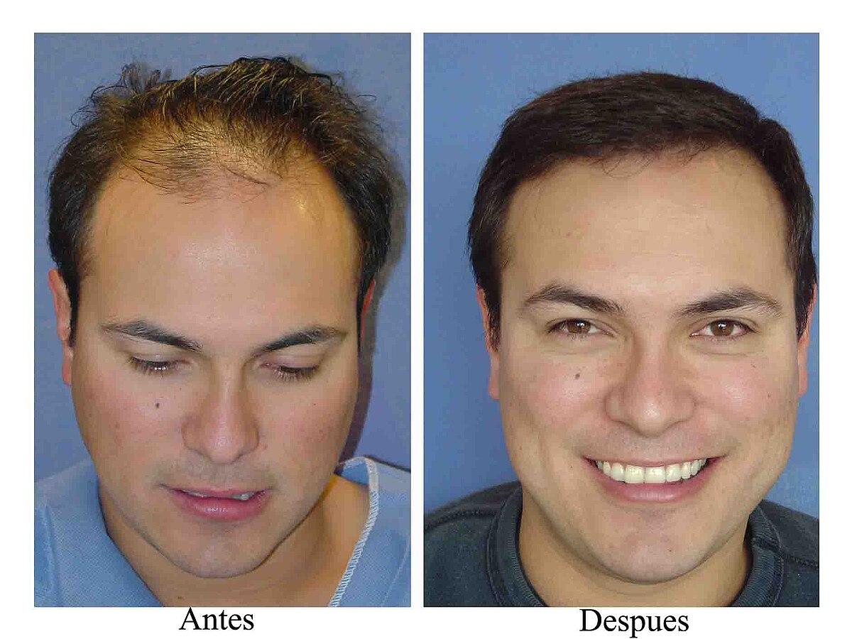 788bc24933b00 Trasplante de cabello - Wikipedia