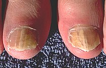 Onychomycosis due to Trychophyton rubrum, right and left great toe PHIL 579 lores.jpg