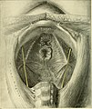 Operative gynecology - (1906) (14596936107).jpg