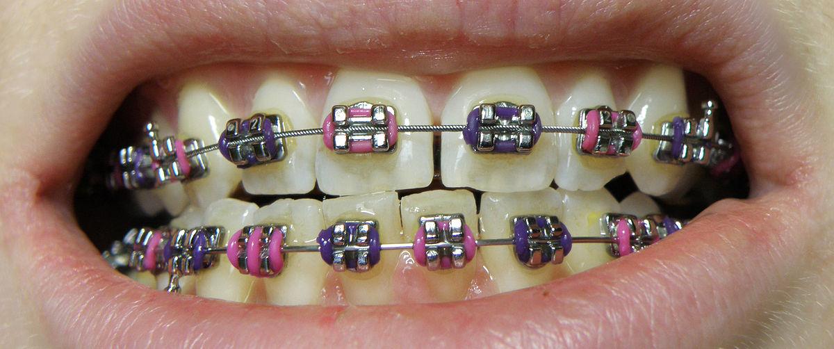 Dental Braces Wikipedia