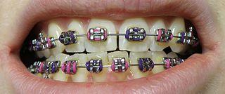 Dental braces Form of orthodontia