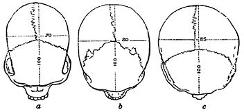 PSM V19 D305 Top view of skulls of various races.jpg