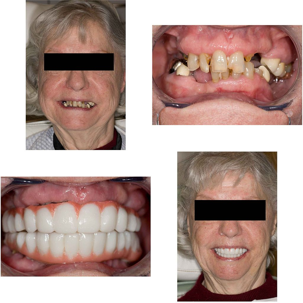 dating bad teeth Depend how bad it's mine are asked under dating they're very attractive and have a great personality,  would you date someone with bad teeth aledeeurope .