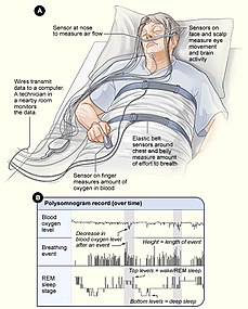 Advanced sleep phase disorder - Wikipedia