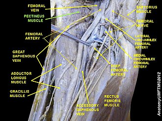 Pectineus muscle - Image: Slide 2LLLL
