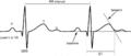 Tangent QT (CardioNetworks ECGpedia).png