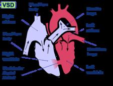 Schéma defektu komorového septa