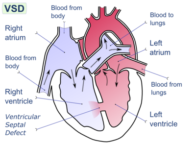 Ventricular septal defect-en.png