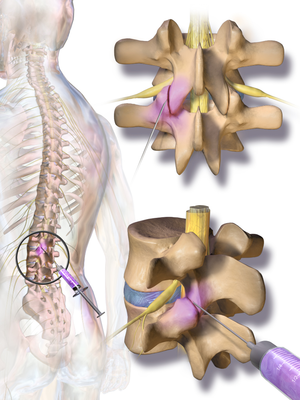 Facet joint injection - Image: Blausen 0391 Facet Joint Injection