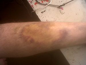 English: A large bruise resulting from a fall
