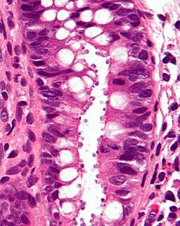 Cryptosporidiosis Parasitic disease
