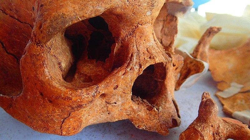 File:Dead human skull.jpg