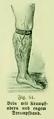 Die Frau als Hausärztin (1911) 061 Bein mit Krampfadern und engem Strumpfband.png