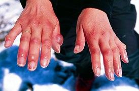Frostbitten hands.jpg