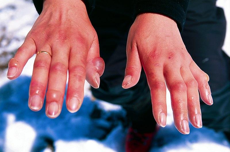 Файл:Frostbitten hands.jpg