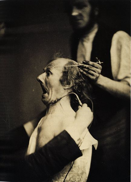 http://upload.wikimedia.org/wikipedia/commons/thumb/e/e2/Guillaume_Duchenne_de_Boulogne_performing_facial_electrostimulus_experiments_%282%29.jpg/433px-Guillaume_Duchenne_de_Boulogne_performing_facial_electrostimulus_experiments_%282%29.jpg