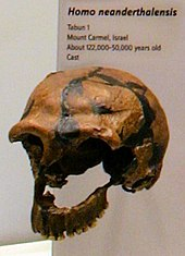 A skull missing most of the left side of the face from the mid-orbit to the teeth