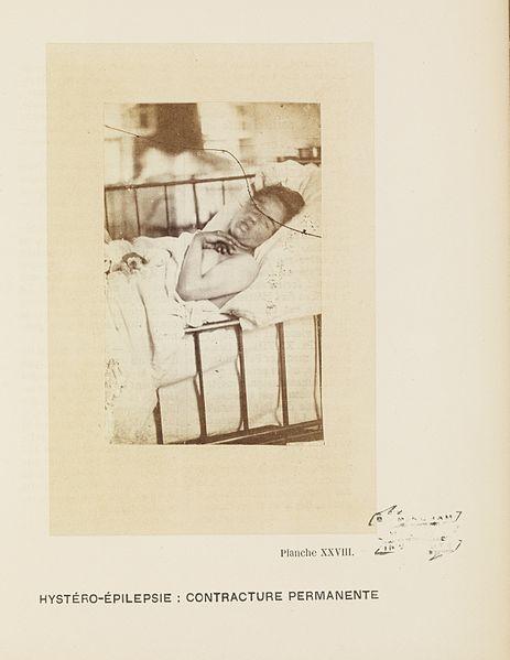 File:Hystero-Epilepsie; Contracture Permanente. Planche XXVIII. Wellcome L0074948.jpg