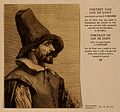 Jan de Doot, a man who extracted a bladder-stone from himsel Wellcome V0007065.jpg