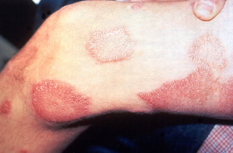 File:Leprosy thigh demarcated cutaneous lesions.jpg
