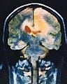MRI Image of Human Head (94-087-1).jpeg
