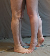 Male and female legs.jpg