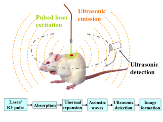 Photoacoustic imaging - Schematic illustration of photoacoustic imaging