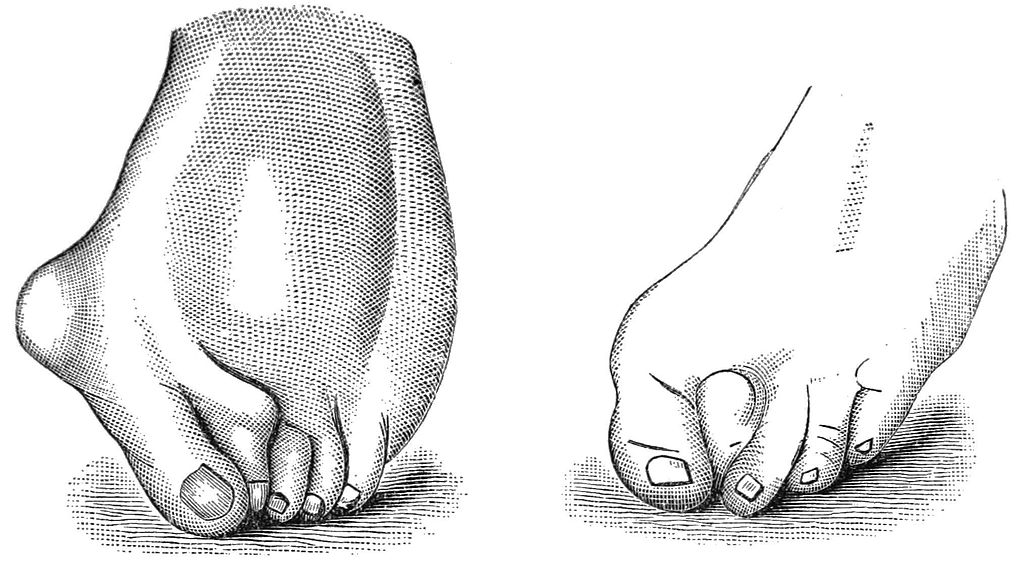 File:PSM V24 D668 Female feet deformed by high heel narrow small