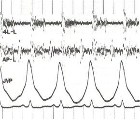 Phonocardiogram.jpg
