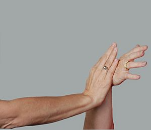 Pushing hands - The practitioner on the right demonstrates how péng can be used to resist a push