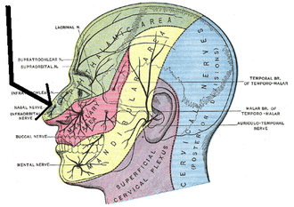External nasal nerve - Sensory areas of the head, showing the general distribution of the three divisions of the fifth nerve. (Nasal nerve labeled at center left.)